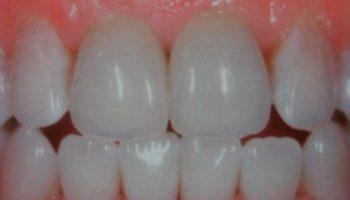 Estetica dintilor frontali